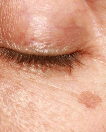 Manchas en la piel: Combate las manchas de la edad