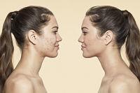 Conoce el mejor make up para la piel propensa al acné