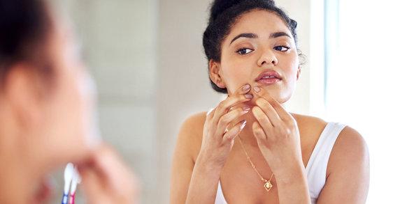 ¿Cómo cuidar la piel cuando sufres acné hormonal?