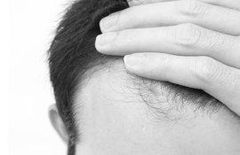 evitar caida cabello