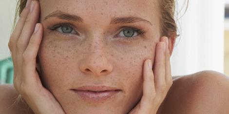 ¿Qué es la piel sensible y cómo la hidratas?