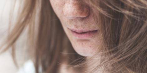 Manchas marrones: trucos de maquillaje para disimularlas